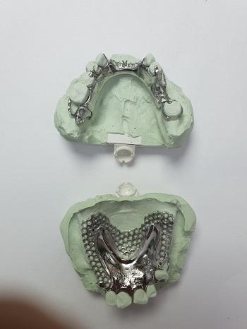 מעבדת שיניים לייצור שיניים תותבות
