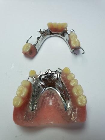 שיניים תותבות חלקיות קבועות