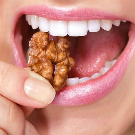 לחזור לאכול אגוזים - טכנאי שיניים